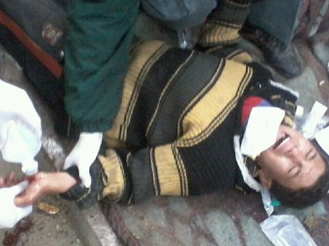 ahmed raafat طفل مصاب بخرطوش في كفه