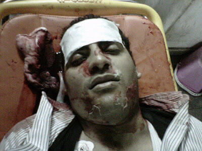 أحمد منصور .. شهيد 17 ديسمبر 2011